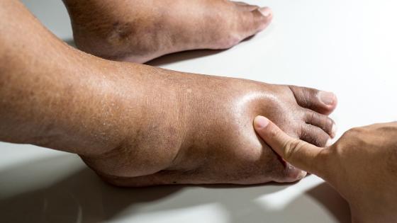 Close up of swollen diabetic feet