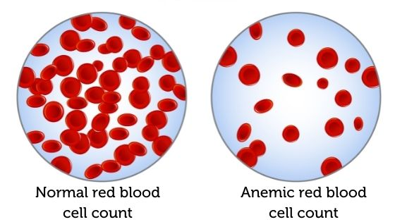 Vector image showing healthy red blood cell count compared to anemic red blood cell count