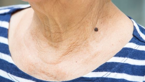 Close up of a skin mole on an older woman's neck