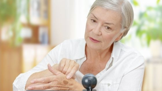 A senior woman shows a suspicious spot on her hand during a telehealth visit
